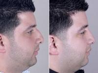 До и после закрытой ринопластики