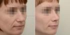 Валерий Стайсупов.Пациентка до и после ринопластики