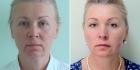 Светлана Пшонкина. Фото пациентки до и после Силуэт Лифт