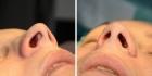 Уменьшение ноздрей по методике Веира. Нос до и после
