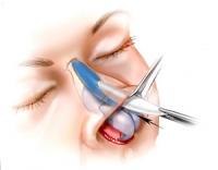 open rinoplasty