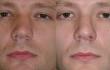 Коррекция смещенной носовой перегородки после травмы