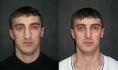 Коррекция носа после травмы. Хирург - Тигран Алексанян