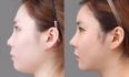 Результат ринопластики в южнокорейской клинике Вонджин
