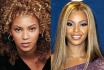 До и после этнической ринопластики