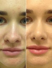 Пациентка до и после ринопластики. Пластический хирург Светлана Пшонкина