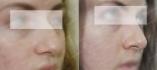 Удаление горбинки в клинике Frau Klinik