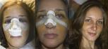 Процесс восстановления после ринопластики. Пациентка Александра Грудько