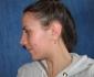 Нос Екатерины через 2 недели после операции