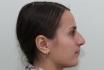 Пациентка Александра Грудько до пластики носа