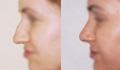 До и после пластики носа у Глеба Тумакова