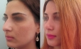 До и после ринопластики у Али Алиева