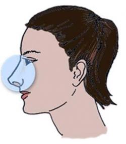 Осложнения после ринопластики