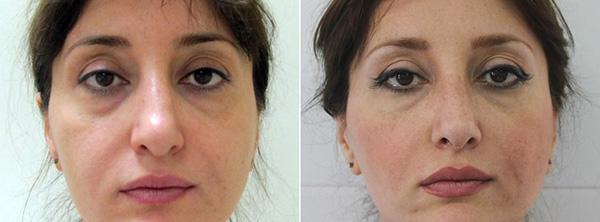 Фото до и после реконструктивной ринопластики у Александра Гуляева