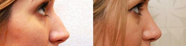 Фото до и после ринопластики у Александра Жукова