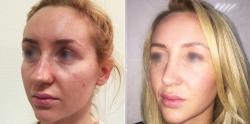 До и после ринопластики у Светланы Пшонкиной