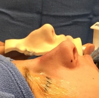 С реальной моделью носа результат после ринопластики будет точнее
