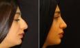 Геворг Степанян. Пациентка до и после ринопластики