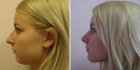 Фото до и после ринопластики у Светланы Пшонкиной