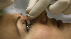 Контурная пластика носа: взгляд пациентки и хирурга