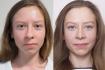 Фото пациентки до и после ринопластики