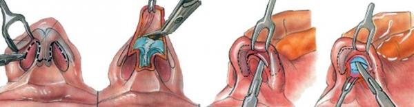 Открытая и закрытая ринопластика