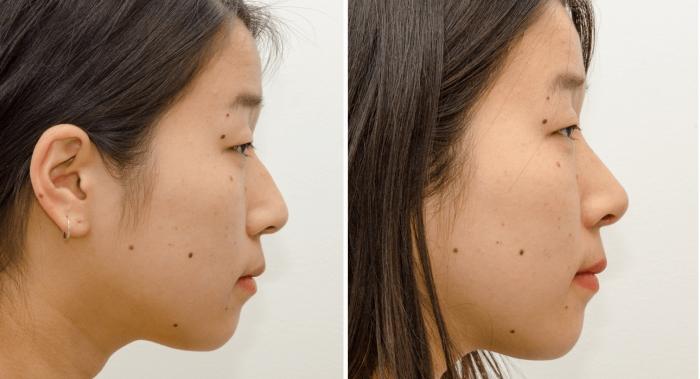 Азиатский нос до и после ринопластики