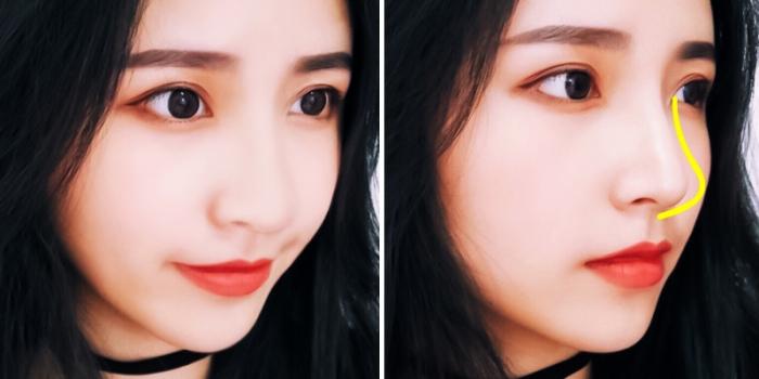Азиатский нос ринопластика
