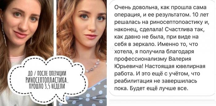Отзыв пациентки Валерия Стайсупова после ринопластики