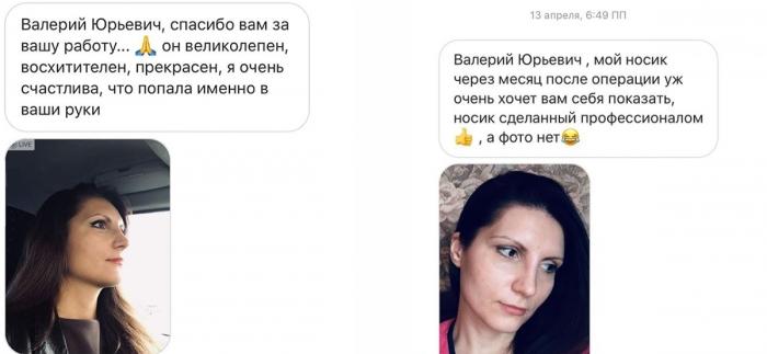 Ринопластика Валерий Стайсупов отзывы