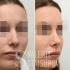 Фото до и после ринопластики у доктора Валерия Стайсупова