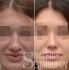 Фото пациентки до и после ринопластики у Валерия Стайсупова