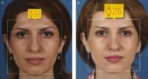 Фотографии до / после, изученные искусственным интеллектом