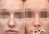 Закрытая ринопластика у пластического хирурга Валерия Стайсупова. Фото пациентки до и после.