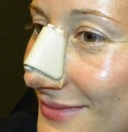 Пациентка после пластики носа