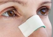 13 советов ускорят реабилитацию после ринопластики