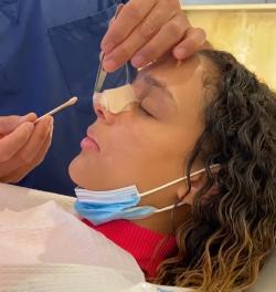 Уход за носом после ринопластики