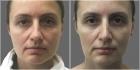 Пациентка доктора Светланы Пшонкиной до и после ринопластики